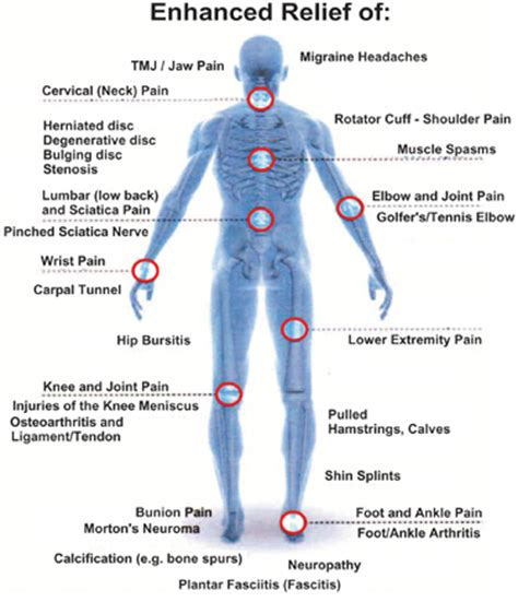 high power laser therapy in physiotherapy laser therapy fit for vaughan chiropractor