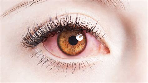 diabetic retinopathy symptoms  complications