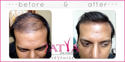 reviews on synthetic hair transplant synthetic hair transplant nido 2000 grafts m