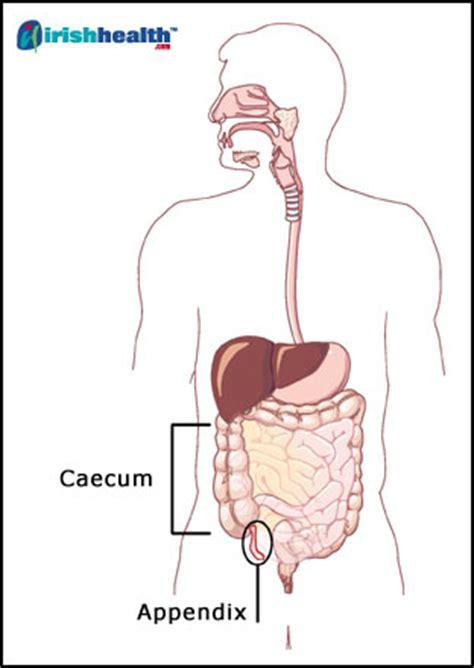appendicitis location diagram the bullocks