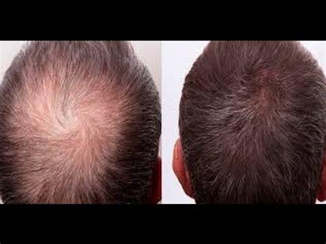 hair loss apple onion garlic apple cider vinegar hair loss recipe youtube