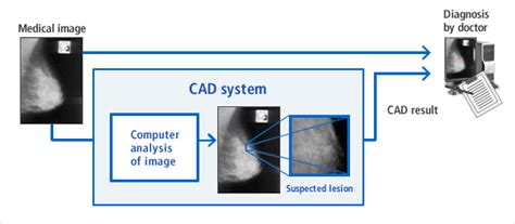 Diagnosis Interpreting The Shadows diagnostic support system for mammography healthcare