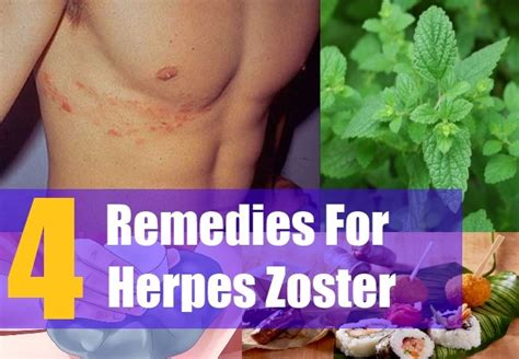 4 ways to treat herpes zoster home remedy for herpes