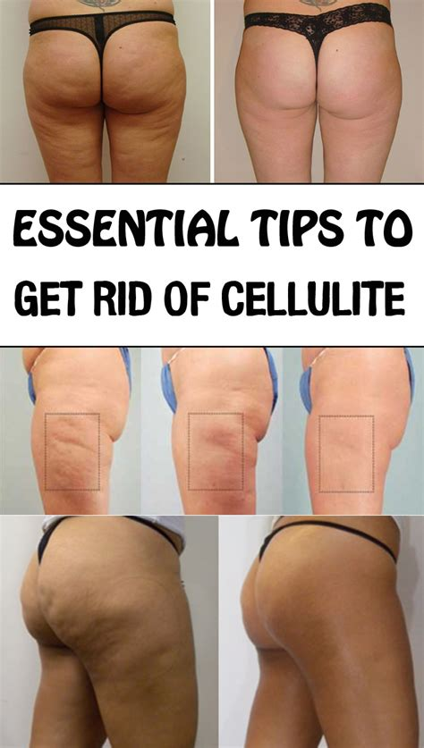 Does Detox Water Get Rid Of Cellulite by Essential Tips To Get Rid Of Cellulite Just Tips
