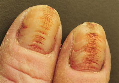 damaged toenail bed pics for gt nail matrix injury
