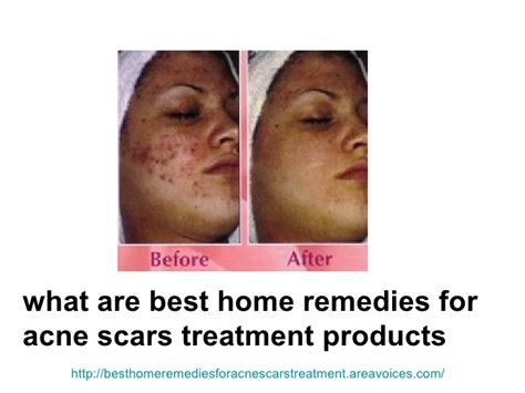 Best At Home Acne Treatment by Real Whitening Skin How To Get Rid Of Acne Home