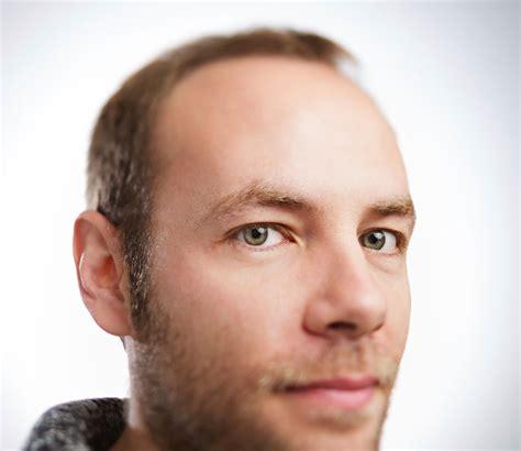 best hair loss shoo for men four steps to prevent hair loss