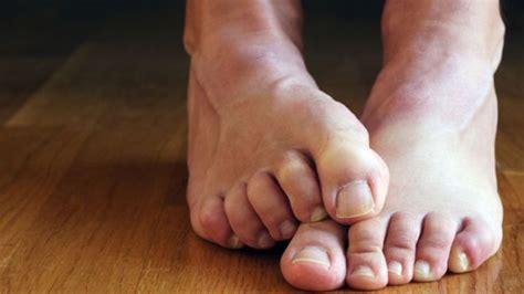 mal di testa notturno cause il bruciore ai piedi o eritromelalgia il portale sulla