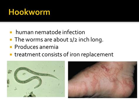 intestinal parasites ppt