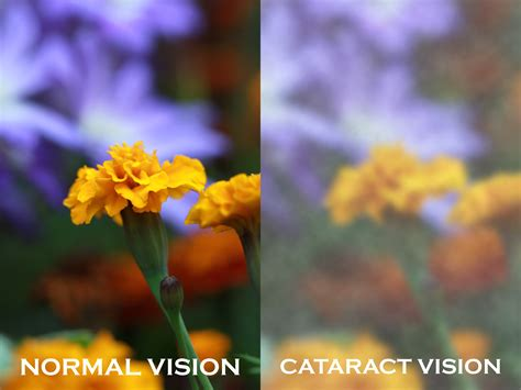 Mata Vision Cataract Eye Problem In The Elderly