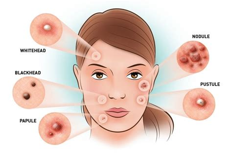 What Is Acne by What Is Acne Vulgaris And What Are Acne Vulgaris Types