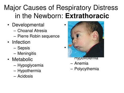 choanal atresia powerpoint ppt respiratory distress in the newborn not rds