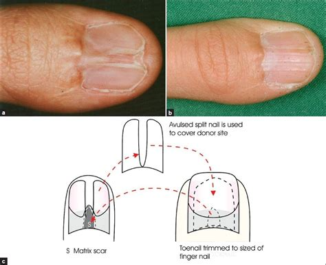 nail bed repair nail matrix repair