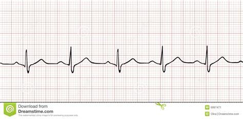electronic cardiogram stock vector image of beat