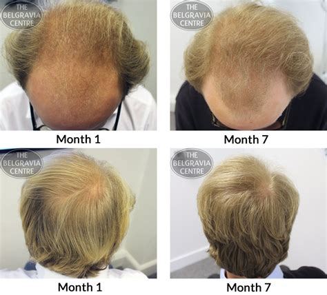 male pattern hair loss diet male facial hair loss lingerie free pictures