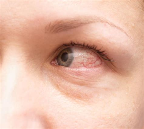Can U Get Pink Eye From On A Pillow by Image Gallery Leukemia Eye Symptoms