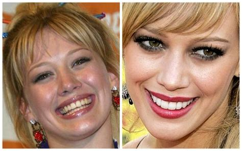 helen hunt jackson significance celebrity teeth before and after teeth matter
