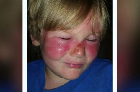 banana boat burns child suffers second degree burns after applying sunscreen