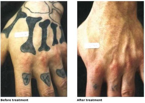 tattoo removal before and after dark skin hydroquinone for removal hydroquinonecream us