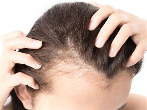 female pattern hair loss nice guidelines mobility aids types benefits and use