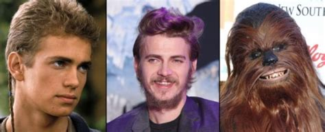 hayden christensen what happened gorgeous celebrities stars who have aged horribly