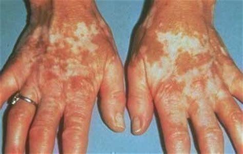 vitiligo american academy  dermatology