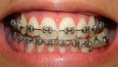 the gallery for gt braces colors combinations braces color combinations www imgkid com the image kid