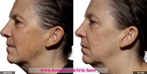 tria age defying laser before and after photos tria age defying laser before and after photos