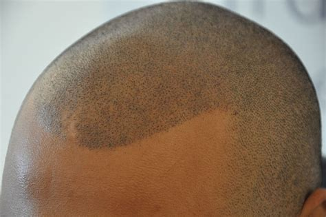scalp micropigmentation for hair what is scalp micropigmentation his hair clinic