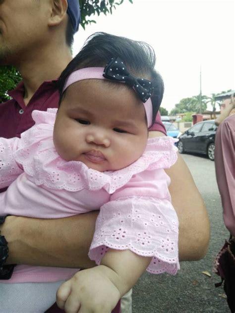 Headband Bayi 18 Pertimbangkan 6 Risiko Ini Jika Anda Suka Pakaikan