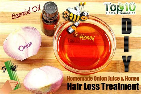 best homemade hair loss treatment diy homemade onion juice and honey hair loss treatment