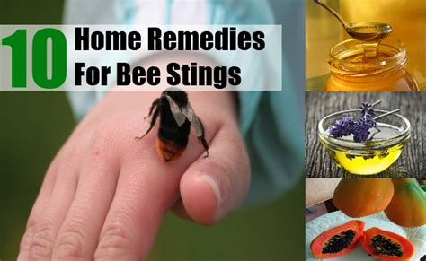 10 home remedies for bee stings treatments