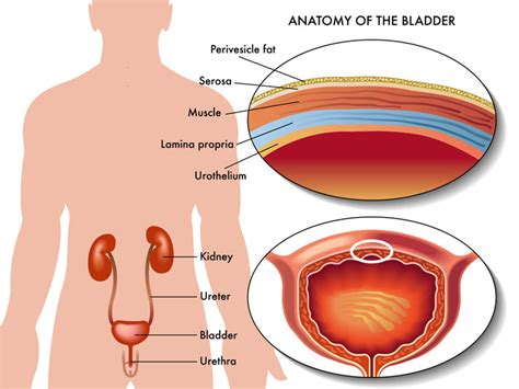 urinary tract infection after c section open bladder surgery orange county surgeons