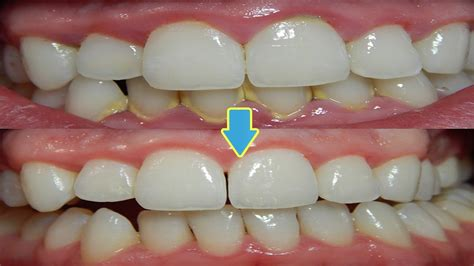 how to remove plaque from s teeth how to remove teeth plaque naturally at home best remedies for teeth plaque removal