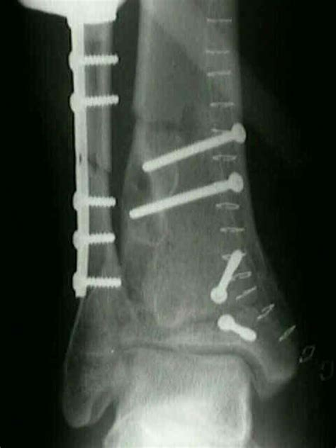 Tibial Plafond by Tibial Plafond Fracture C Related Keywords Tibial