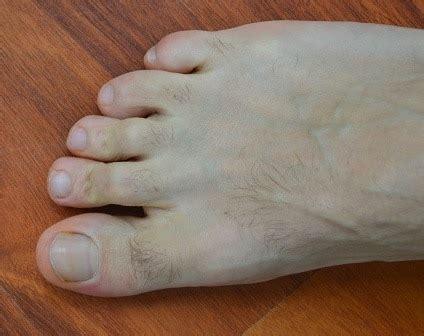 dolore tallone interno dolore alla pianta piede o sul dorso all esterno
