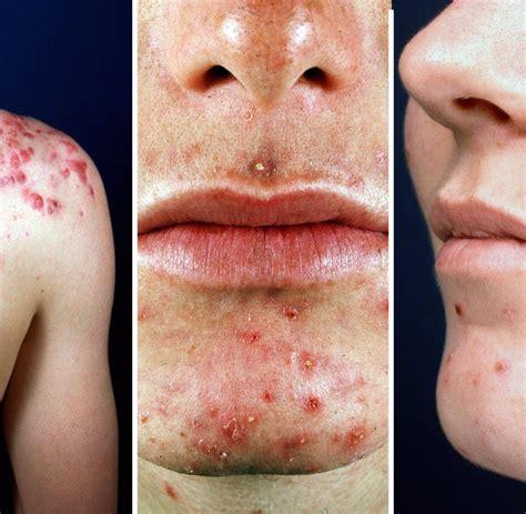 dermatologie wenn die akne im winter richtig aufbl 252 ht welt