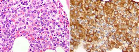 enfermedad de cadenas ligeras y pesadas cast nephropathy