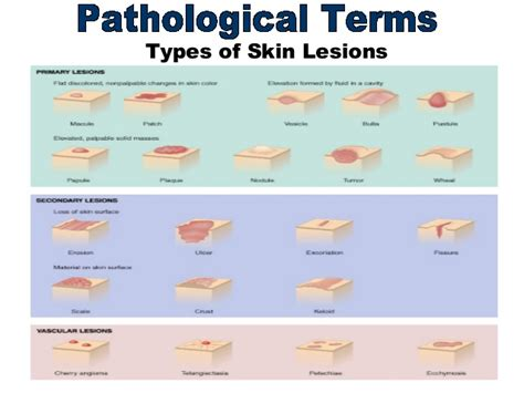 pattern analysis of skin lesions image gallery skin lesions