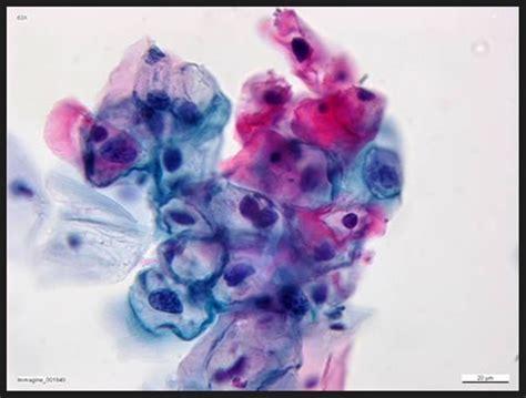 pap test e papilloma virus contro il papillomavirus il test hpv dna augura una nuova