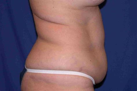 mini tummy tuck after c section gallery abdominoplasty
