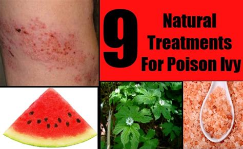 9 treatments for poison how to treat poison