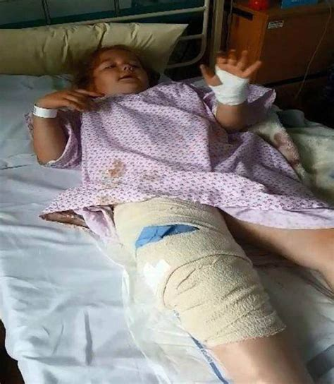 israeli men in bed six year old girl ended up in hospital after being mauled