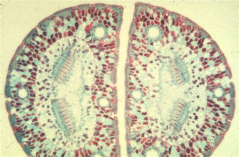 pine needle cross section leaves large images