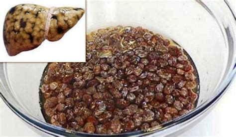 Raisins For Liver Detox by How To Cleanse Your Liver With Raisins And Water