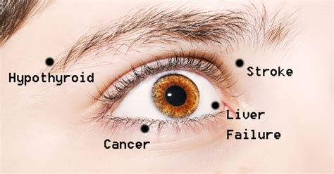 eye problems 8 eye problems that may actually indicate disease
