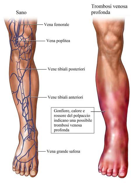 mal di ginocchio interno flebite alla gamba sintomi e cura