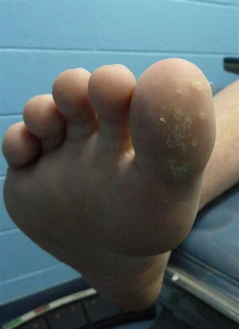 Planters Wart On Toe by Plantar Warts Brightonpodiatry Au