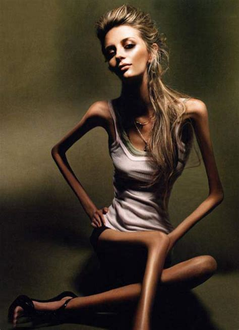 Is Anorexic by Extraordinary Amazing And Pictures Most