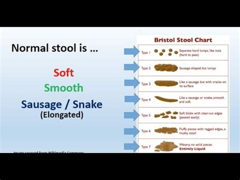What Foods Make Your Stool Soft by Watery Stool Causes Of Liquid Fluid Bowel Movement